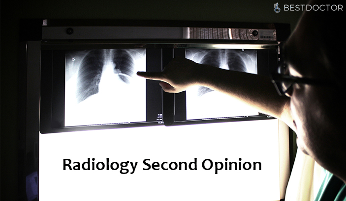 Rediology second opinion