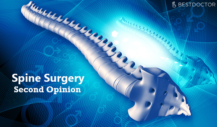 spine surgery second opinion