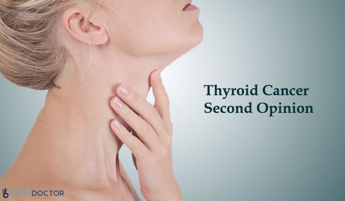 Thyroid cancer second opinion