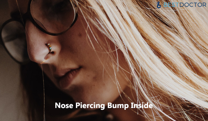 Nose Piercing Bump Inside Nose - Causes & Treatment