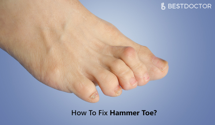 How To Fix Hammer Toe